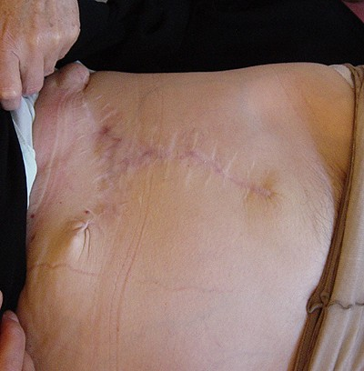 Опухоль кожи живота (1-2)